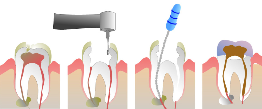 A graphic showing the stages of a root canal.