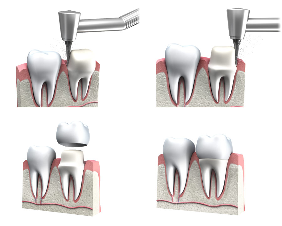 A graphic showing the preparation for a dental crown.
